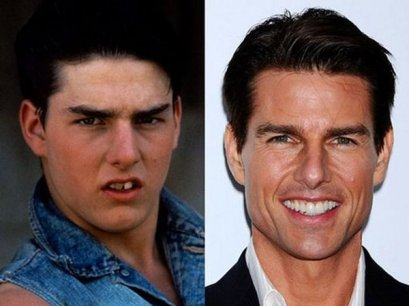 tom cruise antes despues feo